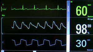 stock-footage-close-up-of-patient-monitor-displays-vital-signs-ekg-oxygen-saturation-spo-respiration-and